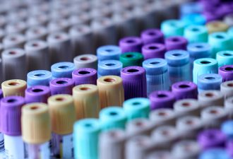 Laboratorio Clínico de la UCT ofrece exámenes gratuitos a la comunidad